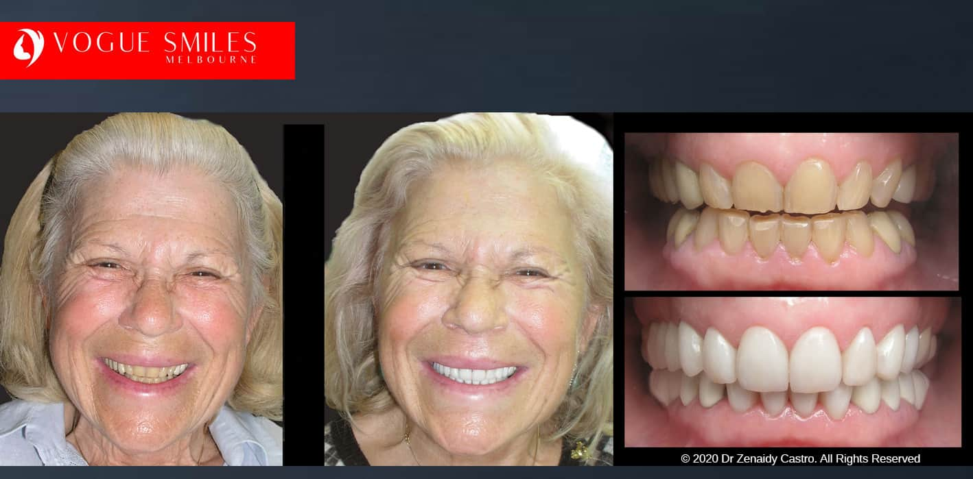 face lift dentistry near me - Anti Aging Melbourne - Cosmetic Dentistry Clinic- Before and after dental photos -VOGUE SMILES MELBOURNE
