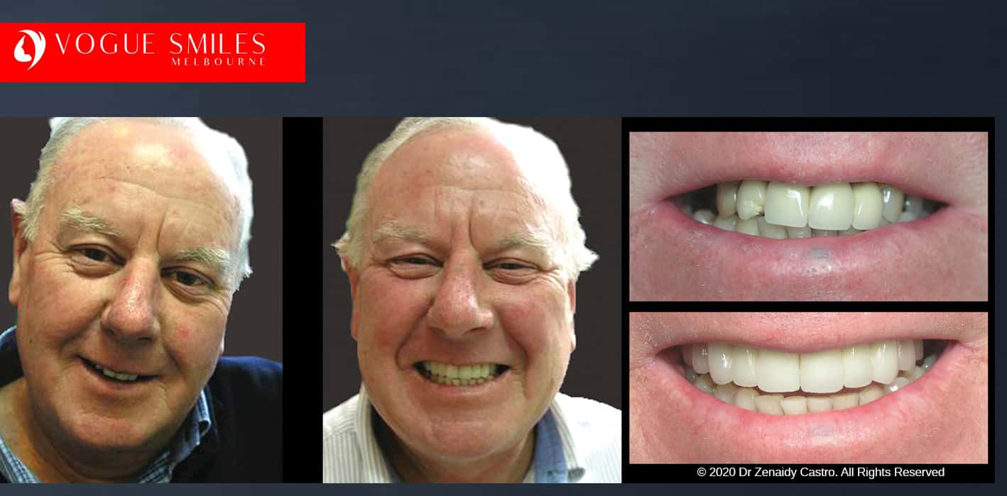 Anti-Aging Dentistry Before & After   Dental Facelift Photos -Facelift Before and After- Leading Cosmetic Dentist in Melbourne Australia