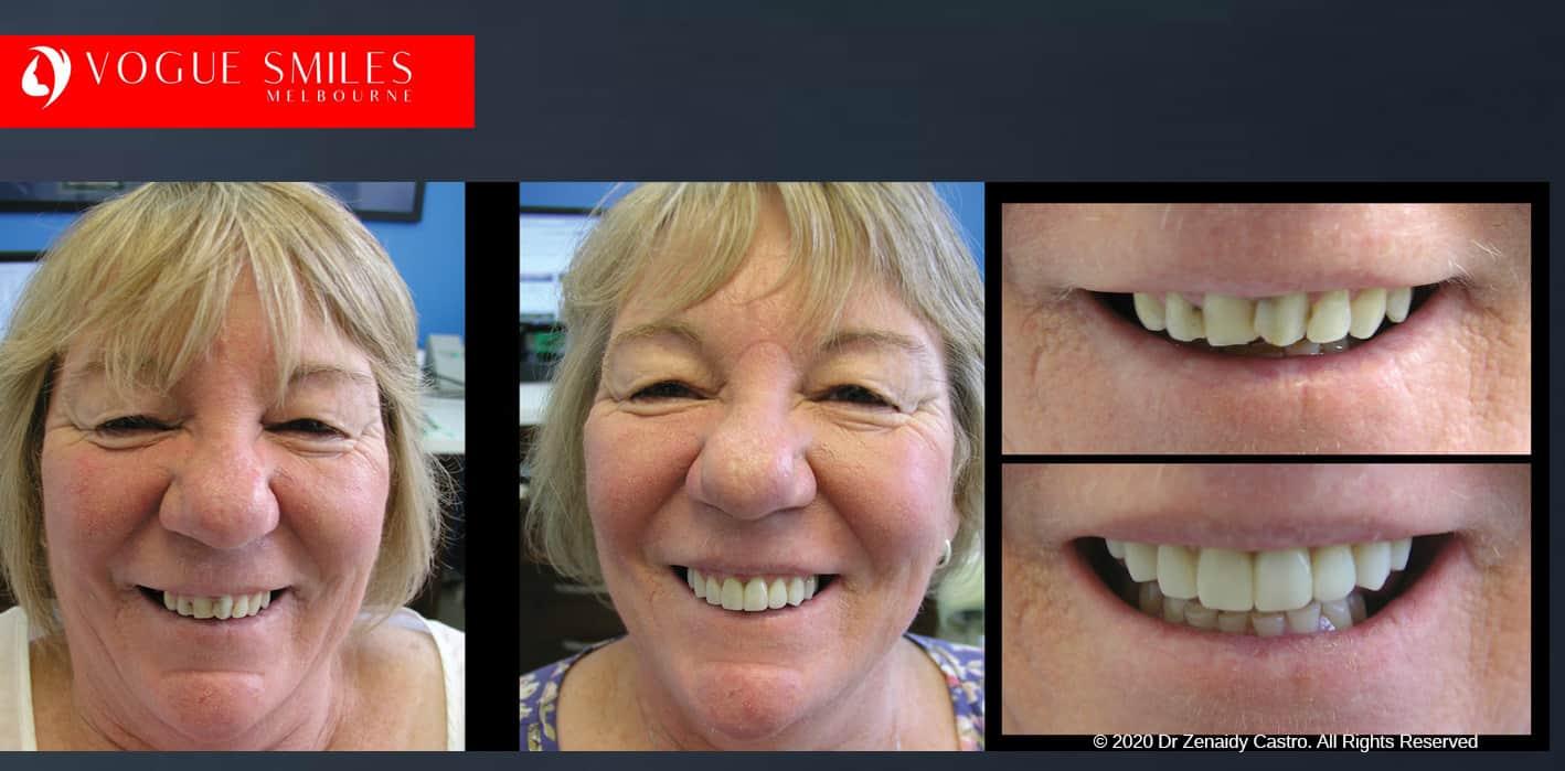 Cosmetic Dental Bonding or Tooth Bonding