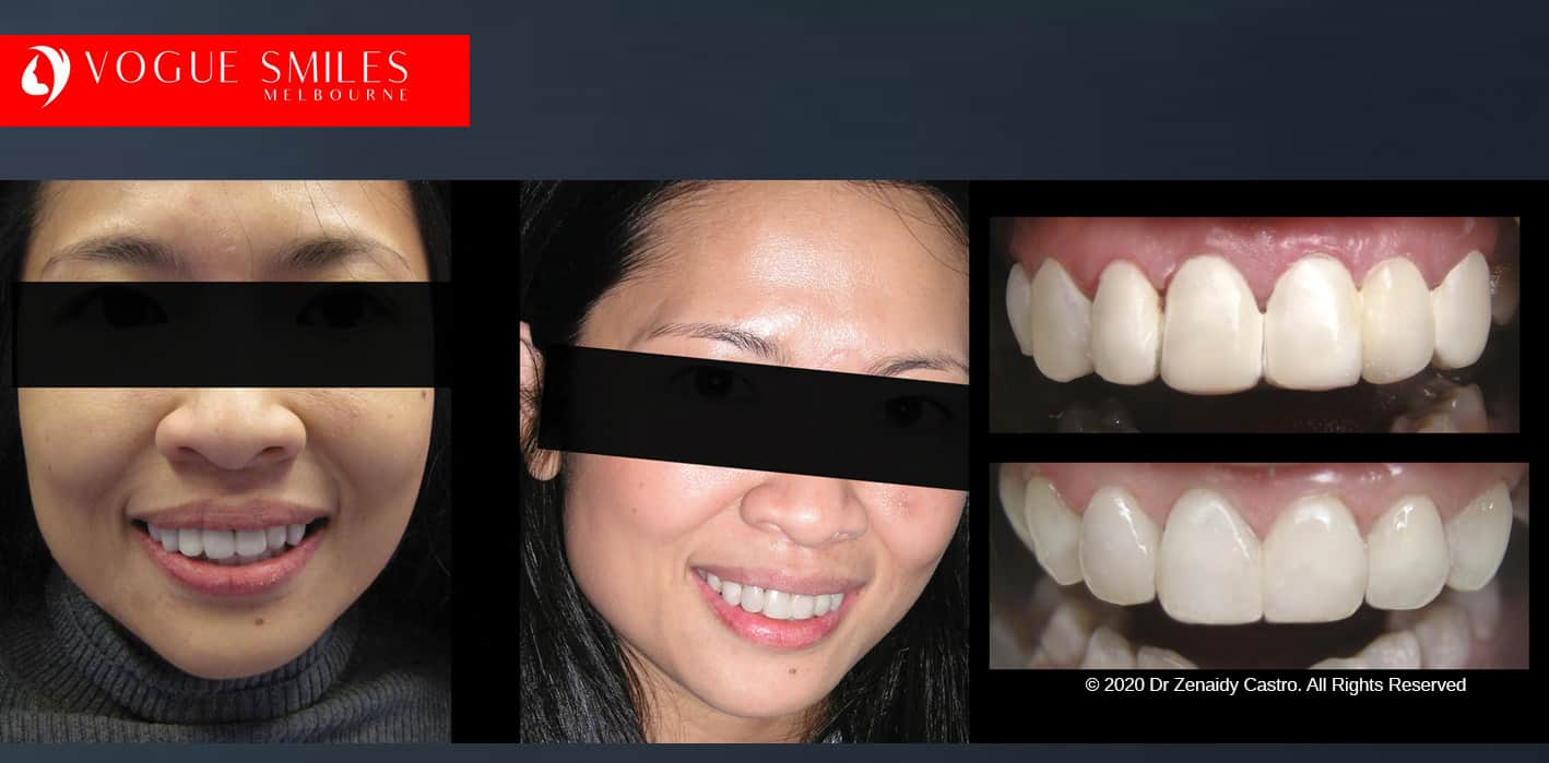 COSMETIC DENTIST NEAR ME - MELBOURNE -full mouth reconstruction cost -Before and After Dental photos -Cosmetic Dentist - Australian Dentists Clinic