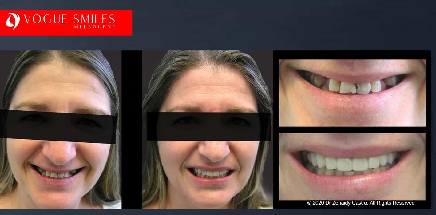 Dental Bonding and Composite Veneer Treatment, Call Vogue Smiles Melbourne