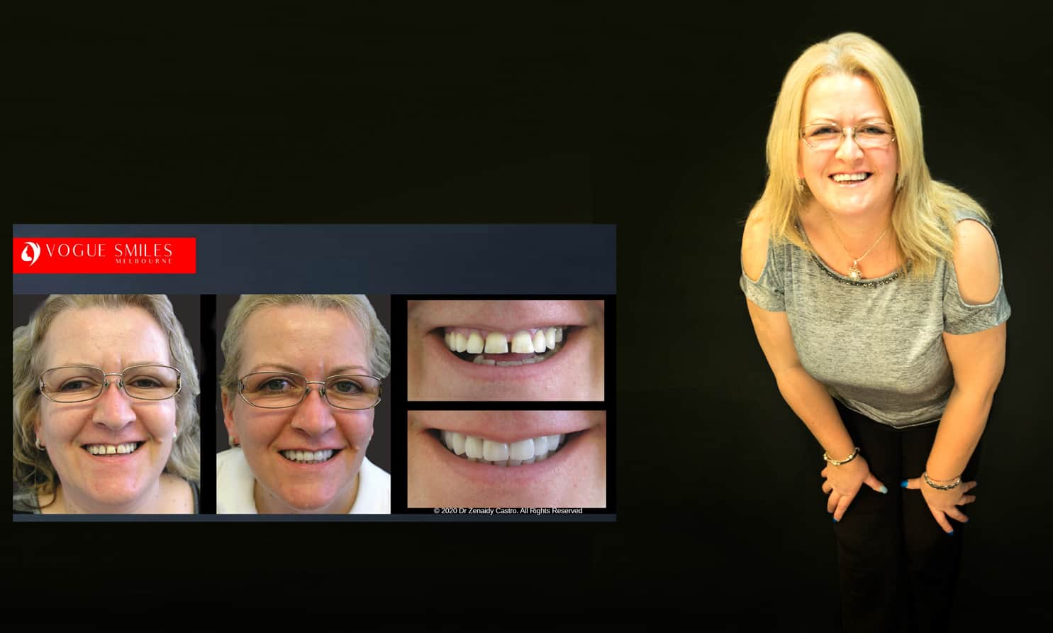 top cosmetic dentists near me | Cosmetic Dentist Melbourne | Best Cosmetic Dentistry Melbourne CBD | Best Veneers Dentist Melbourne Before and after -VOGUE SMILES MELBOURNE