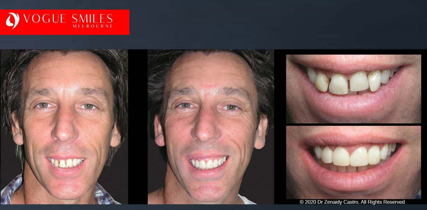 Gappy Teeth Treatment in Melbourne | Gappy Tooth | gap between teeth treatment | how to fix gap in front teeth without braces dentist Melbourne near me VOGUE SMILES MELBOURNE