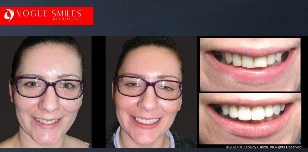 Dental Bonding Before and After   Composite Veneers Smile Gallery Melbourne CBD