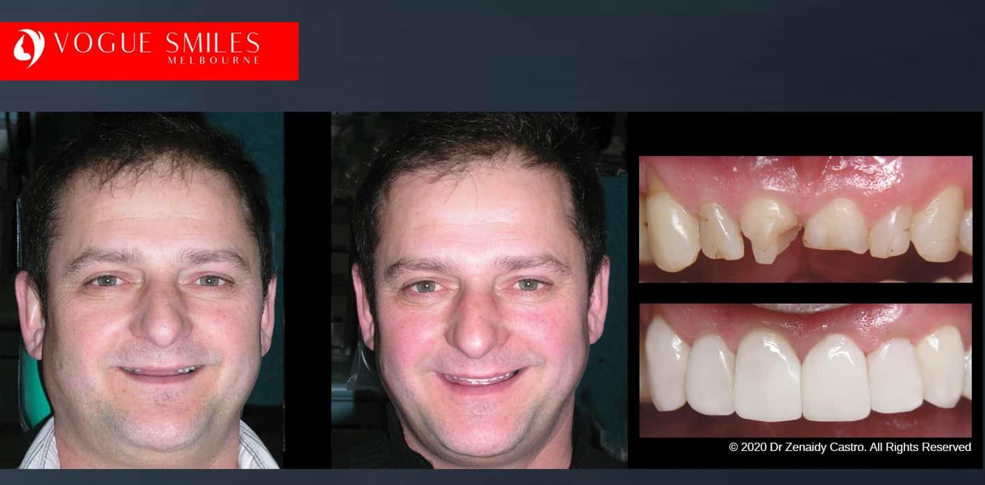 dental bonding before and after, dental bonding near me, dental bonding cost near me, composite veneers melbourne