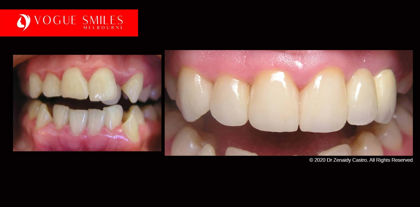 Full Mouth Reconstruction- Full Dental Reconstruction - Mouth Rehabilitation & Implants -dental makeovers Melbourne Australia, extreme smile makeover Melbourne Before and after