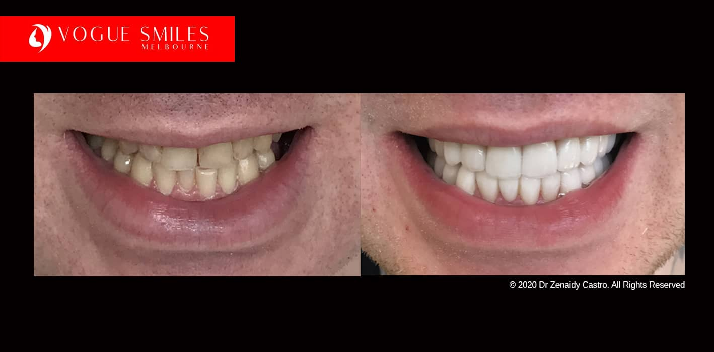 Tooth Whitening Melbourne | Laser Tooth Whitening teeth | whitening cost melbourne | Dental Clinic -surgery-office near me Melbourne CBD | Dentist near me | VOGUE SMILES MELBOURNE