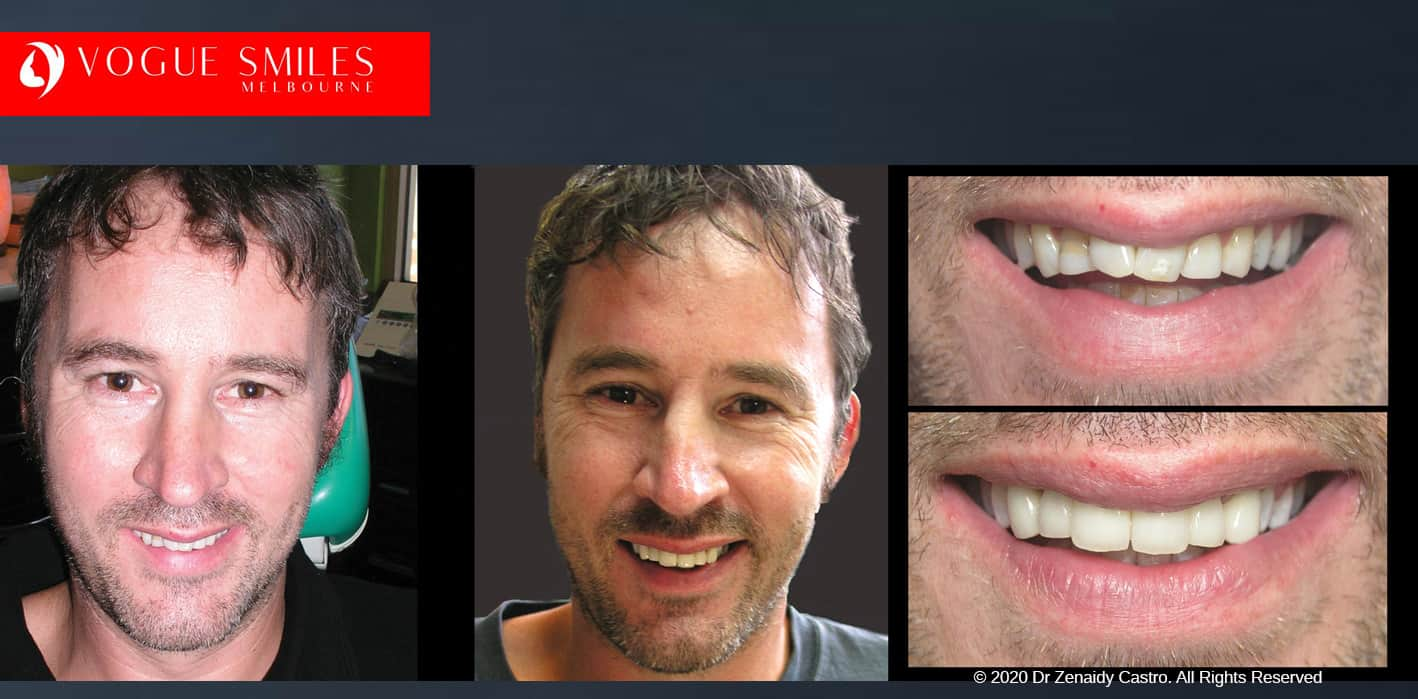 Crooked Teeth Before and After Gallery Melbourne CBD