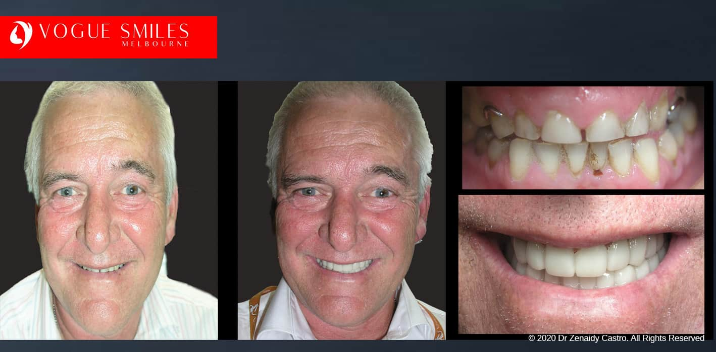 Affordable Cosmetic Dentistry Before & After - SNAP ON SMILE MELBOURNE AUSTRALIA