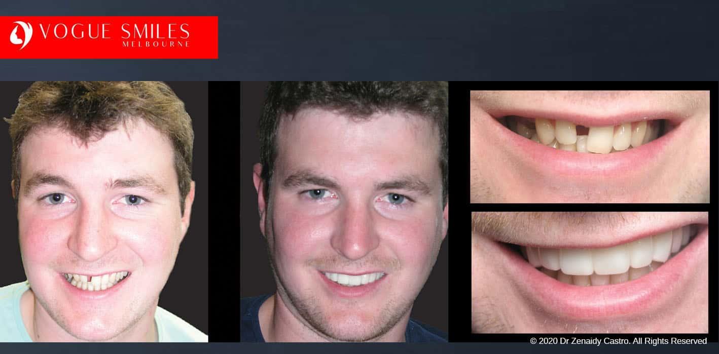 Affordable Smile Makeover Melbourne Before & After - SNAP ON SMILE MELBOURNE AUSTRALIA