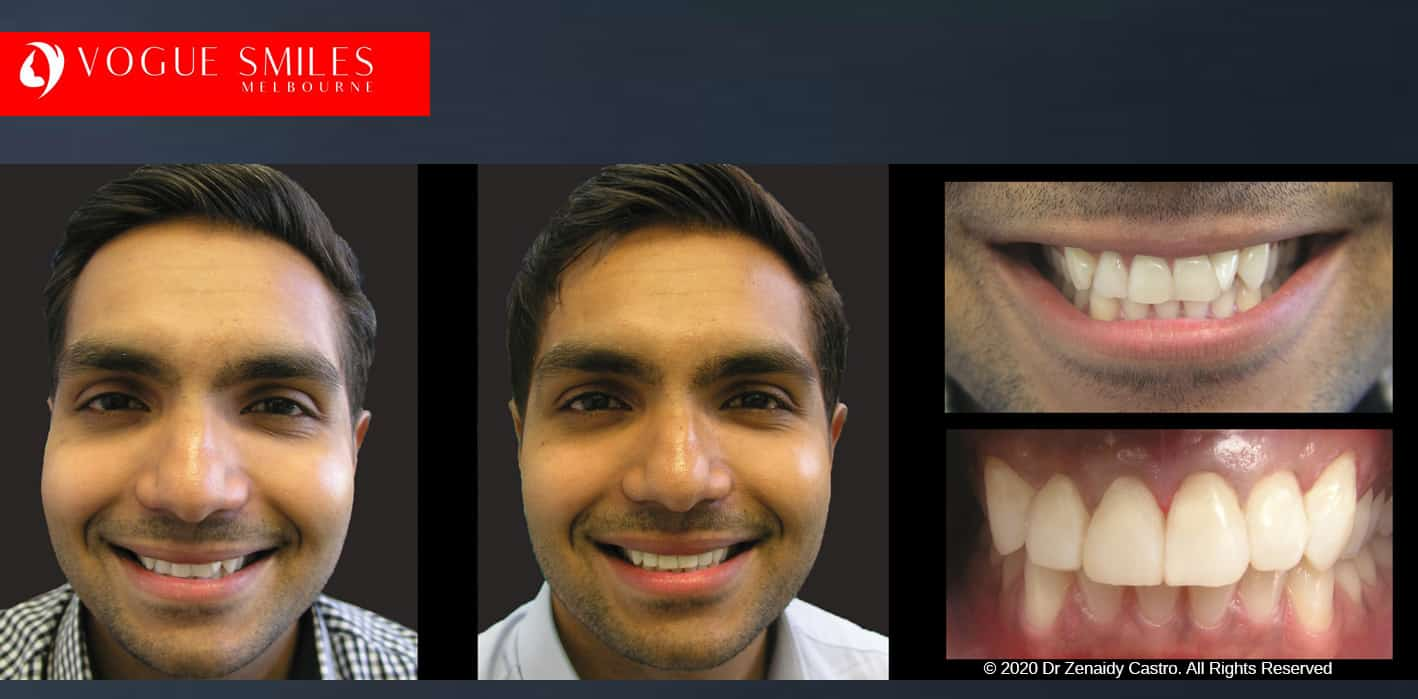 Crooked Teeth Before and After Photos - Smile Gallery Melbourne CBD -VOGUE SMILES MELBOURNE