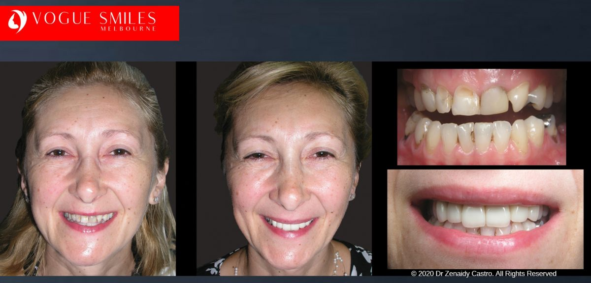 Dr Zenaidy Castro Melbourne's Top Cosmetic Dentist- BEST DENTIST IN MELBOURNE Smile Makeover Before and After Dental Gallery