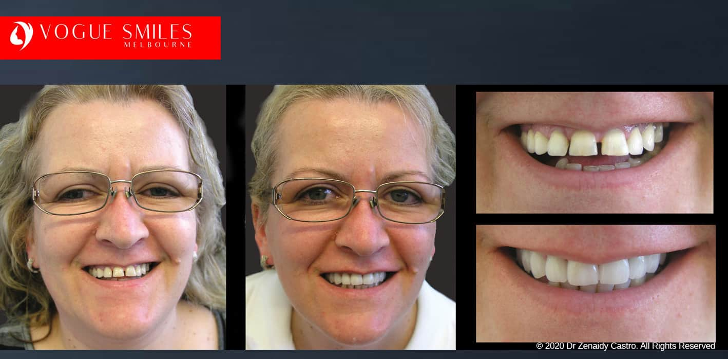 VENEERS DENTIST NEAR ME MELBOURNE CBD -DENTAL VENEERS affordable Porcelain Veneers Melbourne CBD