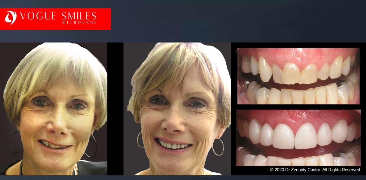 Porcelain Veneers Before and After | Veneers Smile Gallery Melbourne CBD