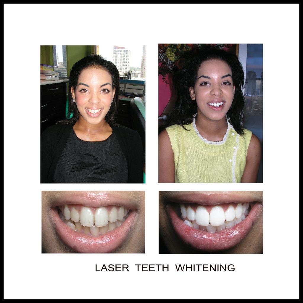 Dentist Melbourne - Melbourne CBD Dental Clinic - DENTIST NEAR ME   VOGUE SMILES MELBOURNE-BEST DENTIST IN MELBOURNE REVIEWS
