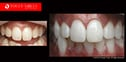 Laser-In-Chair,-in-office-Teeth-Whitening--Melbourne-Dentist--be