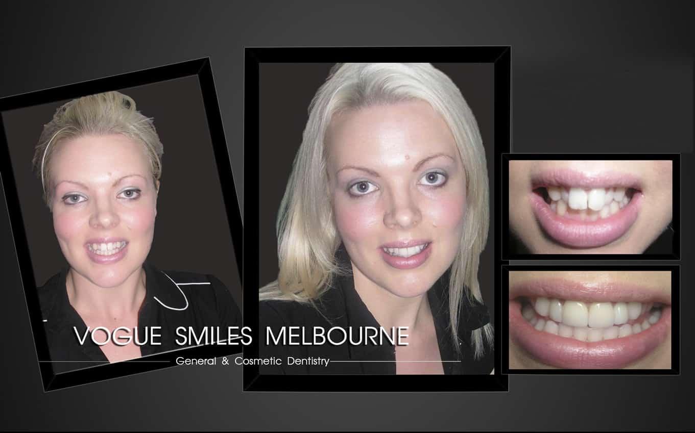 Caring of Your Porcelain Dental Veneers