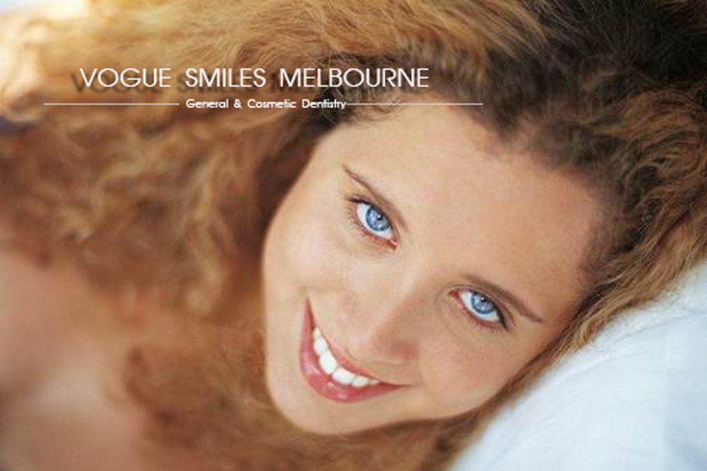 instant veneers - dental bonding -composite Veneers -Vogue Smiles Melbourne -Cosmetic Dentist Melbourne