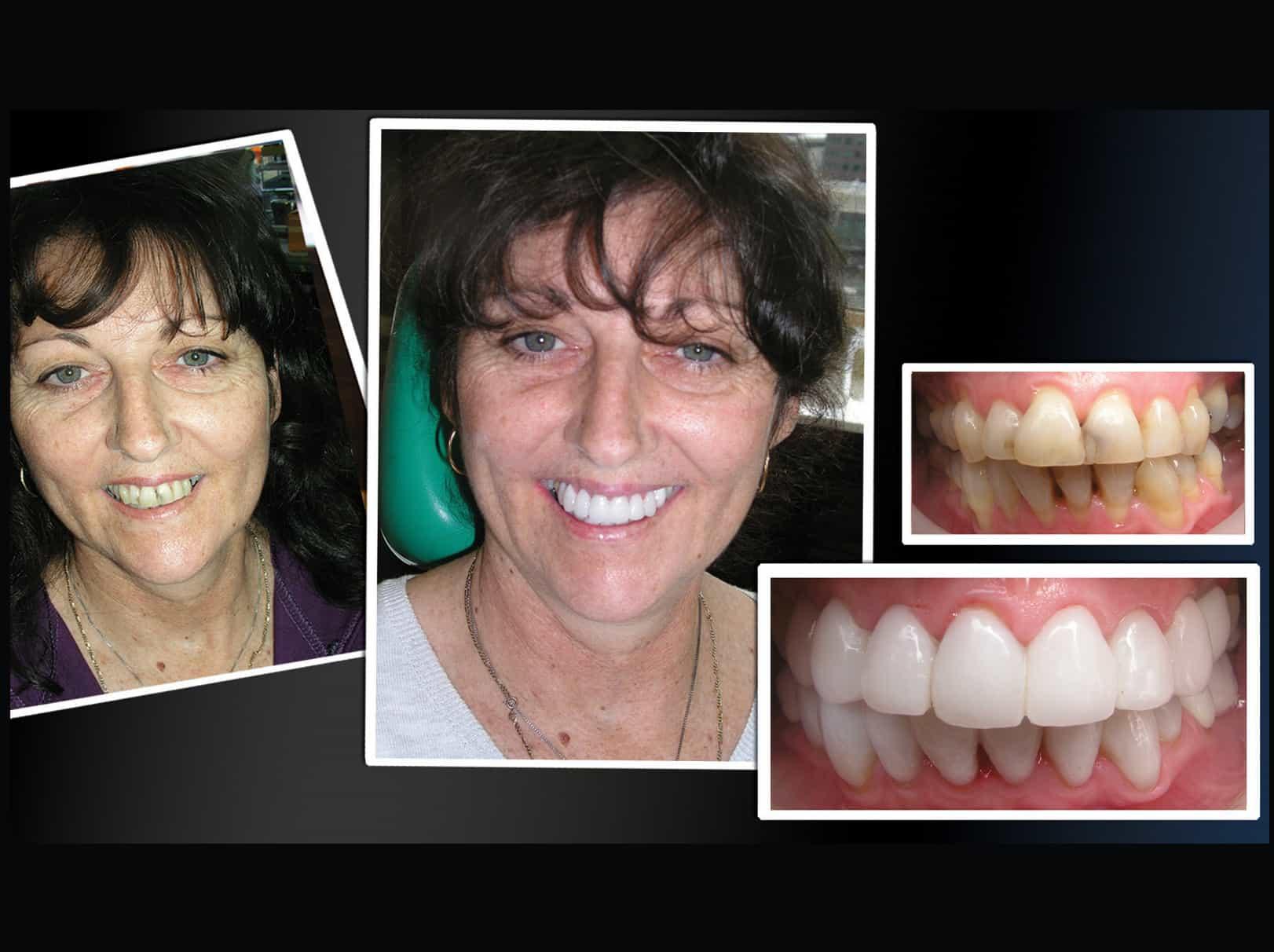 Permanent Teeth Whitening Treatment With Porcelain Veneers