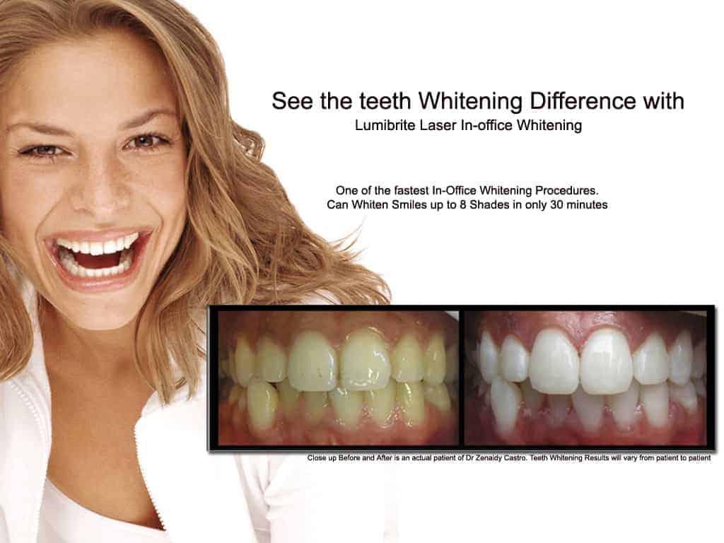 Best Teeth Whitening Melbourne | Sapphire Laser Whitening