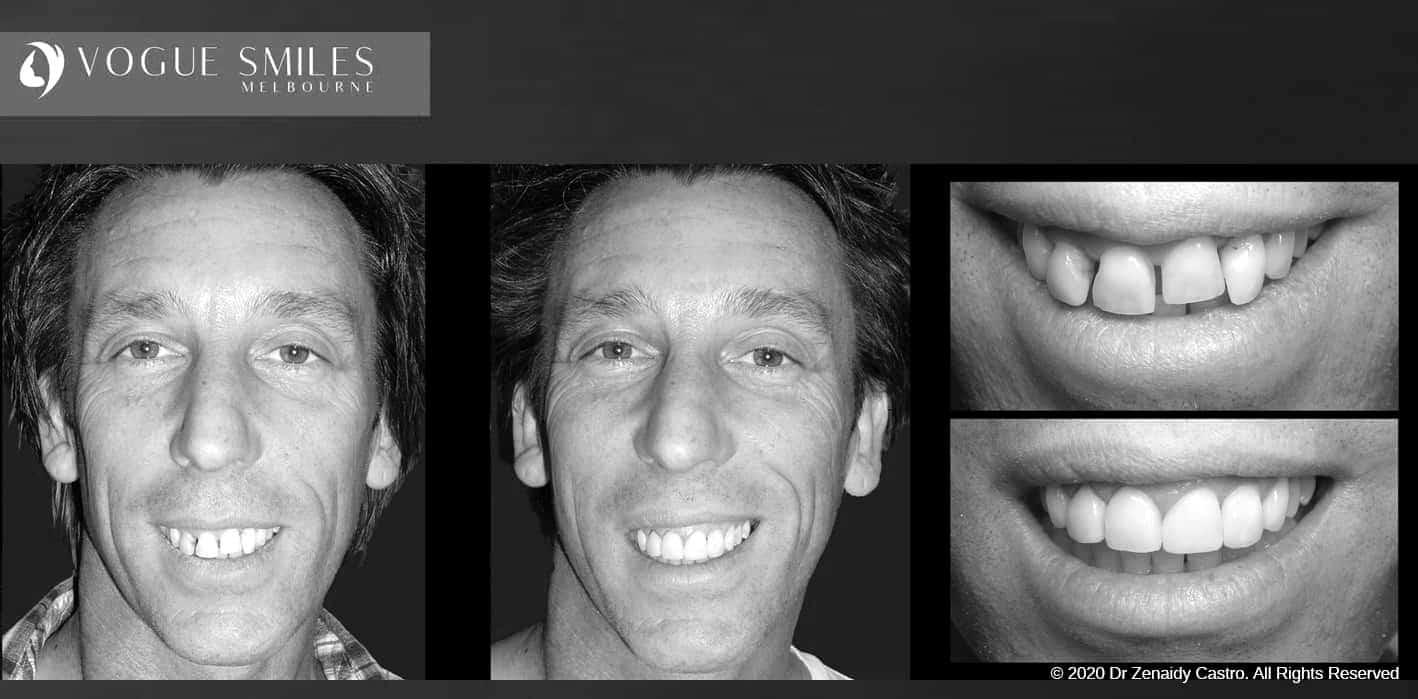 Composite Veneers   Resin Bonding Teeth   Teeth Veneers Melbourne