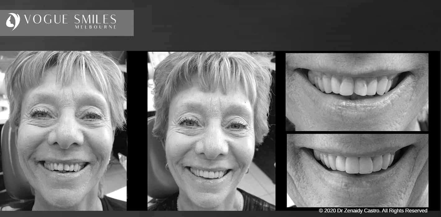 Composite Veneers - Resin Bonding- Teeth Teeth Veneers Melbourne -VOGUE SMILES MELBOURNE