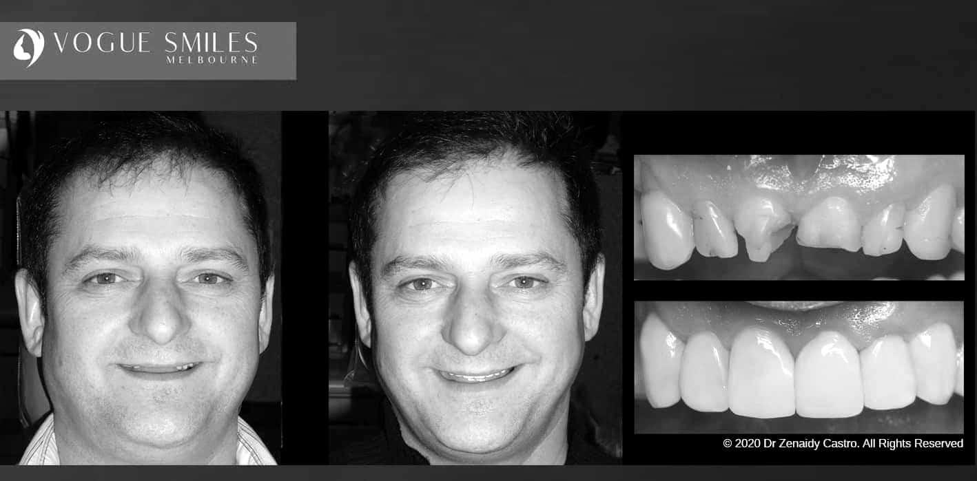 Composite Veneers - Resin Bonding- Teeth Teeth Veneers Melbourne -VOGUE SMILES MELBOURNE (19)