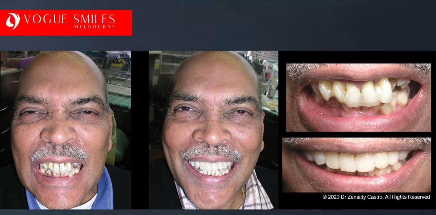 Dental Bonding Melbourne | Improve Smiles With Composite bonding