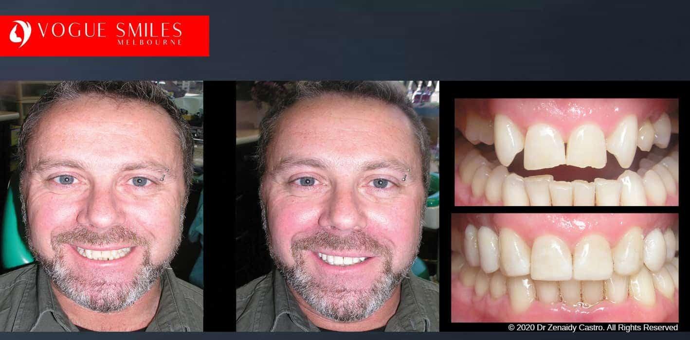 Dental Bonding | Tooth Bonding | Cosmetic Bonding Melbourne