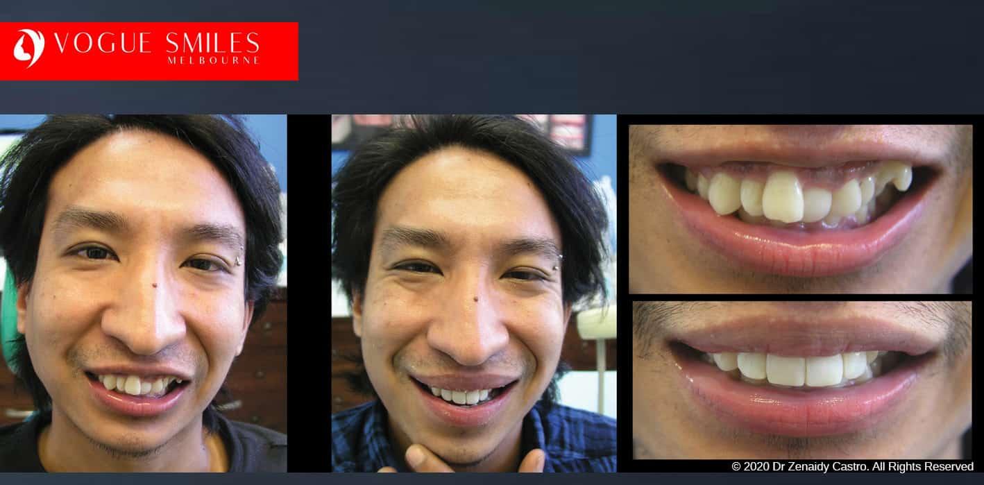 Dental Bonding Melbourne | Improve Smiles With Tooth Bonding