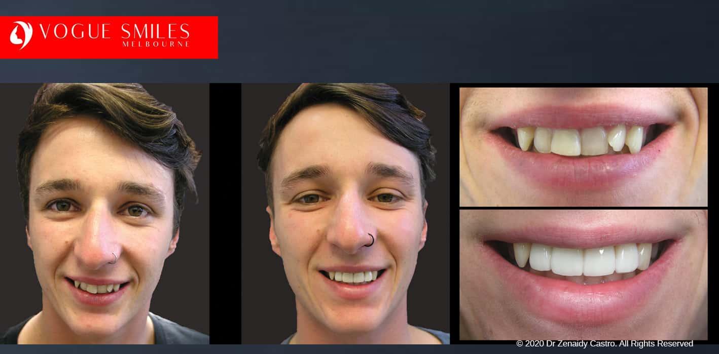 Instantly Straighten Crooked Teeth with Porcelain Veneers