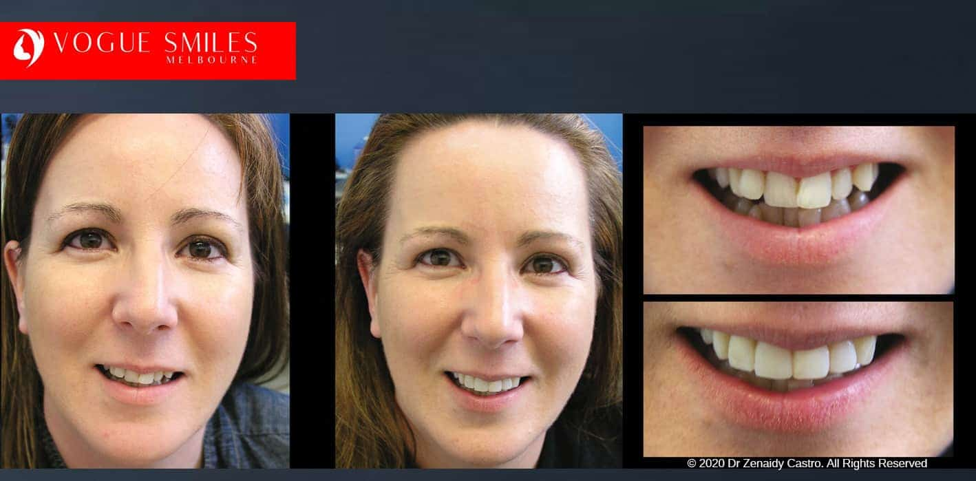 Overlapping, Crooked, Crowded teeth BEFORE AND AFTER PHOTOS WITH PORCELAIN VENEERS