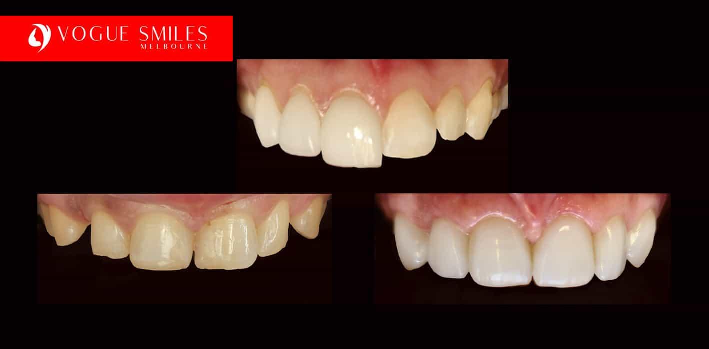 Fixing small Teeth, worn down teeth