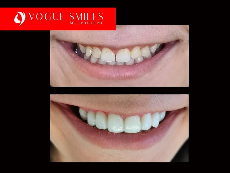 Fixing small Teeth Treatment