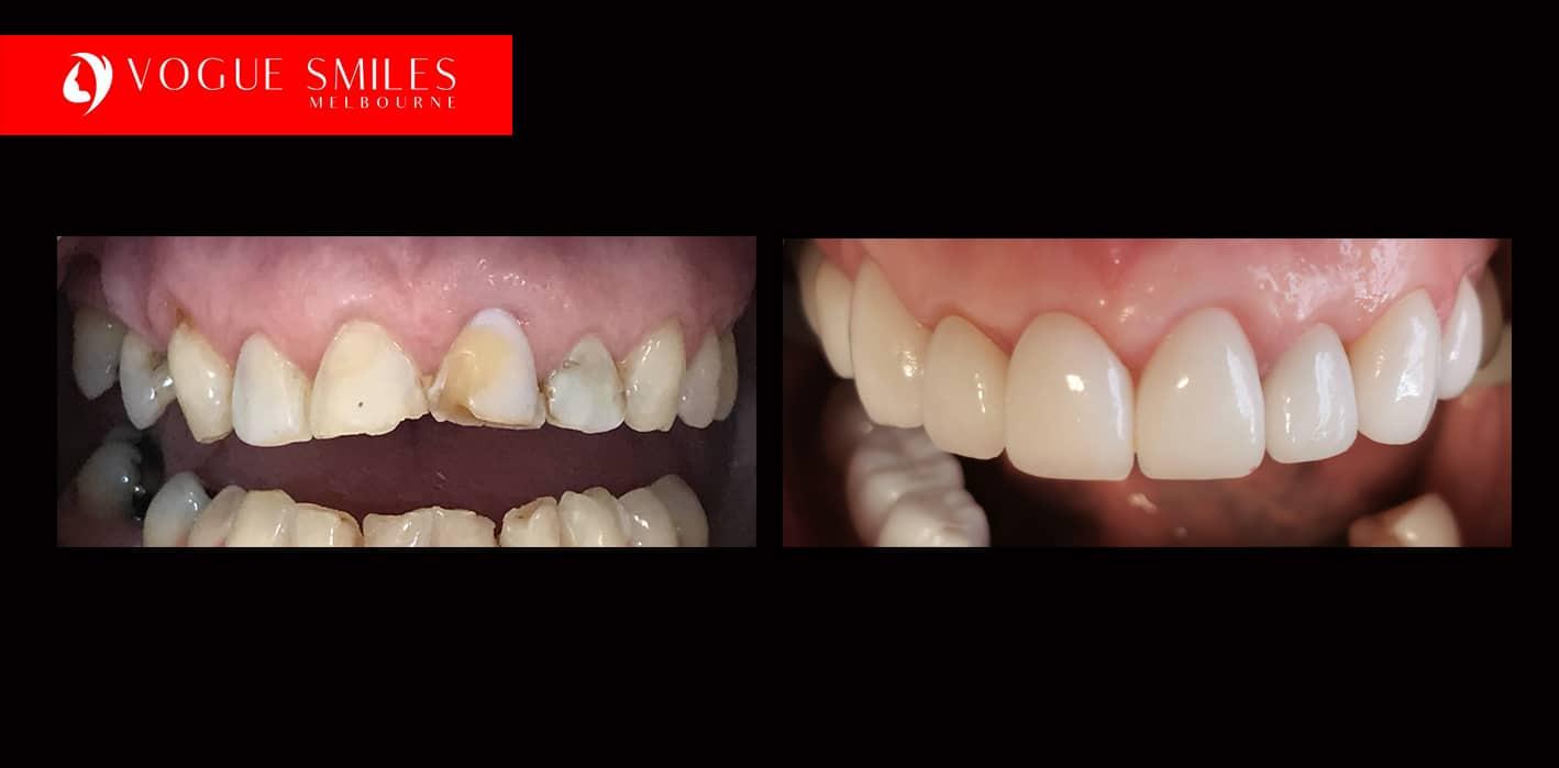 Fixing Short or Worn Down Teeth | Worn Teeth Treatment
