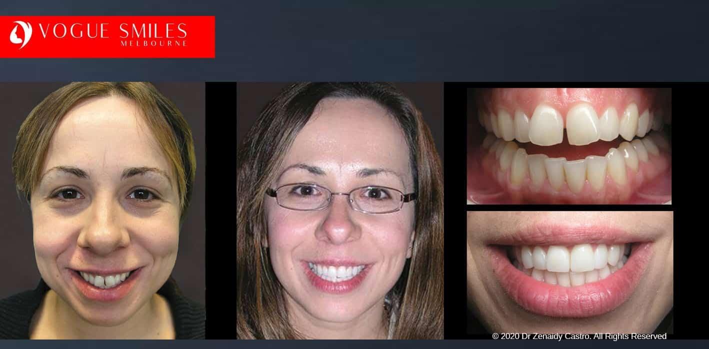 Ways to Fix Gap in Front Teeth | Porcelain Dental Veneers
