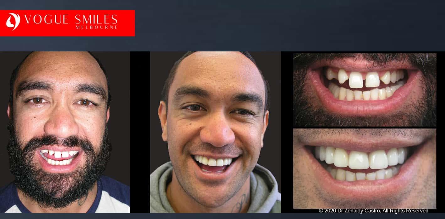 Gappy Teeth Treatment in Melbourne with Porcelain Veneers