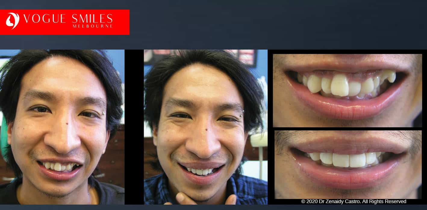 Overlapping, Crooked, Crowded teeth BEFORE AND AFTER PHOTOS WITH COMPOSITE RESIN VENEERS / DENTAL BONDING